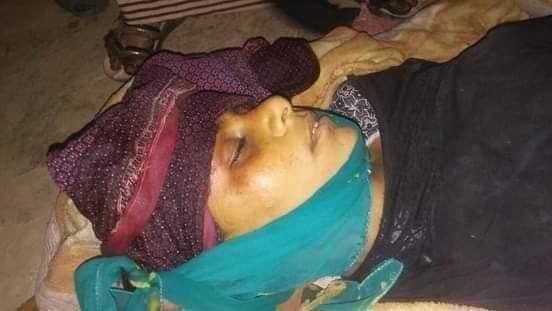 استشهاد وإصابة 13 من المدنيين بقصف مليشيات الحوثي لمنازل المواطنين بالحيمة شرق تعز