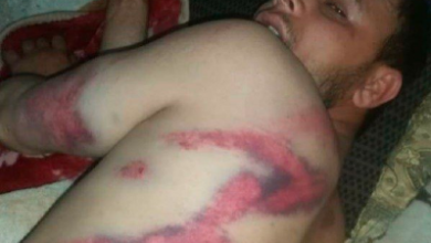 صورة عصابة مسلحة تعتدي على مواطن بالضرب المبرح وتنهب ما بحوزته من اموال ..شاهد الصورة