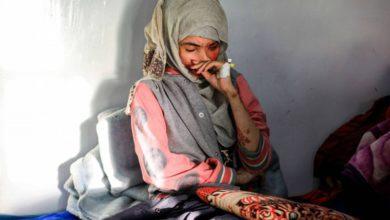 """صورة العنود قصة تدمي القلب.. وجه مشوّه شاهد على معاناة اليمنيات من العنف والزواج المبكر """"فيديو"""""""