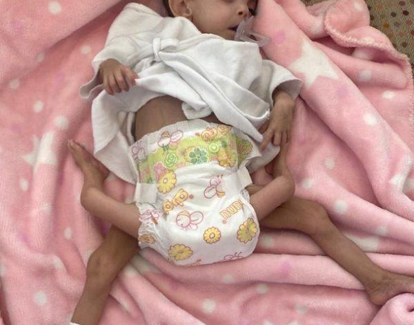 صورة طاقم طبي سعودي يجري عملية فصل توأم طفيلي يمني