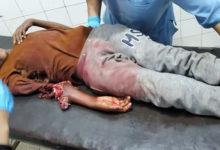 صورة بلا حدود: الثورة في تعز استقبل اليوم طفلتين قتيلتين و 8 جرحى بينهم نساء وأطفال من ضحايا قصف الحوثي