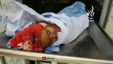 صورة مجزرة حوثية مريعة في تعز خلفت قتلى وجرحى من الأطفال بينهم رضيعة وأمها وشظية تفصل رأس طفله عن جسدها