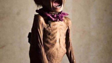 صورة اليمن تواجه أسوأ مجاعة عرفها التاريخ.. أين تذهب المساعدات الأممية؟
