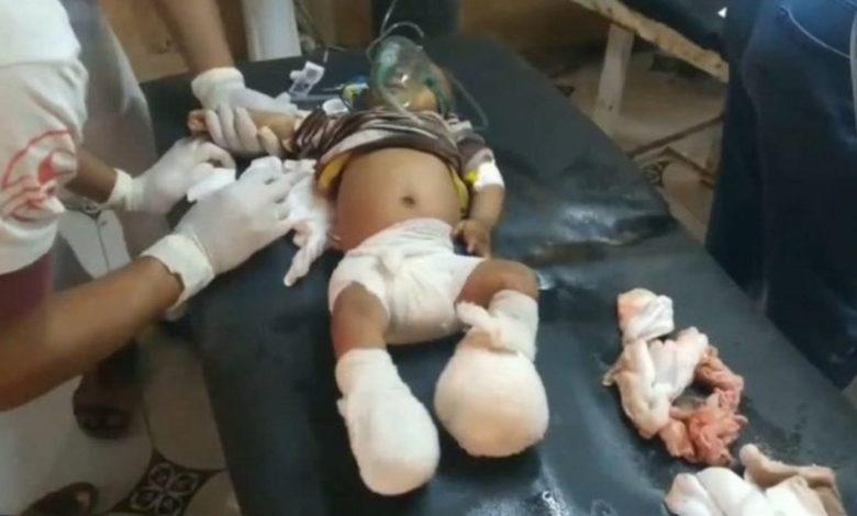 صورة يونيسيف: 11 طفلا قتلوا في هجوم منفصلين خلال الأيام الماضية