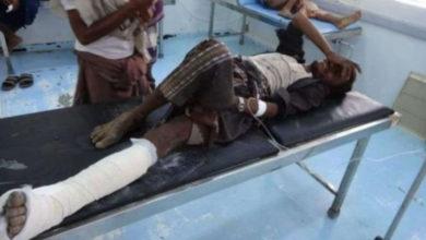صورة لغم حوثي ينفجر بمواطن في الحديدة