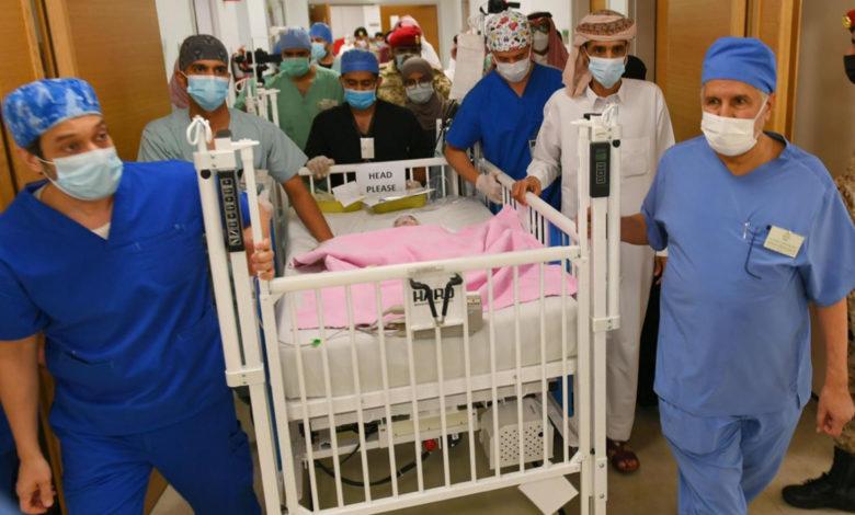 صورة بعد اكثر من 7 ساعات في غرفة العمليات ..نجاح عملية فصل التوأم الطفيلي اليمني