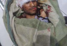 صورة تعز.. وفاة شاب متأثراً بإصابته في مهرجان قلعة القاهرة