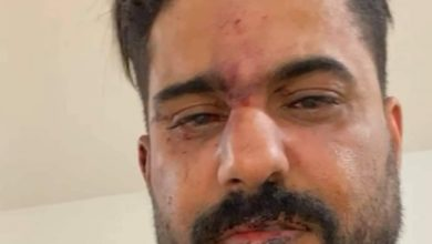 صورة تفاصيل الاعتداء على الفنان عدنان الخضر بتركيا